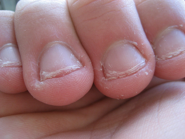 Onychophagia Nail Biting